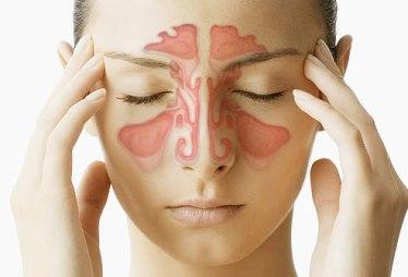 sintomas-de-sinusite-como-aliviar